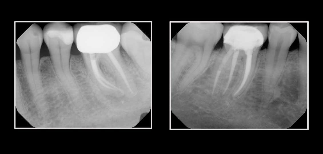 ri endodontics